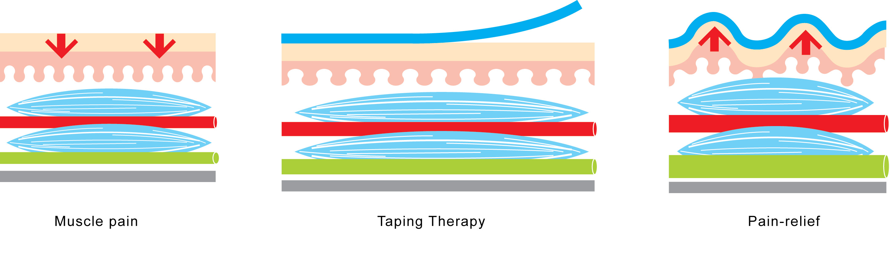 zdravljenje s k.trakovi